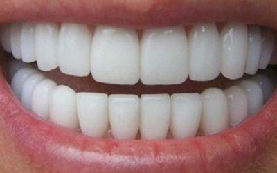 Comment faire pour avoir les dents blanches ?