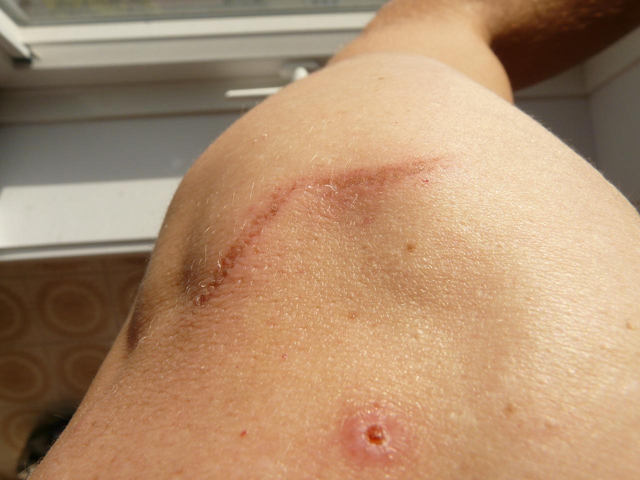 La dermopigmentation correctrice, une solution aux cicatrices et accidents de la vie